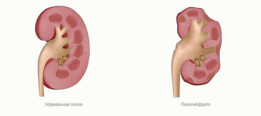 аллергия на клюкву симптомы