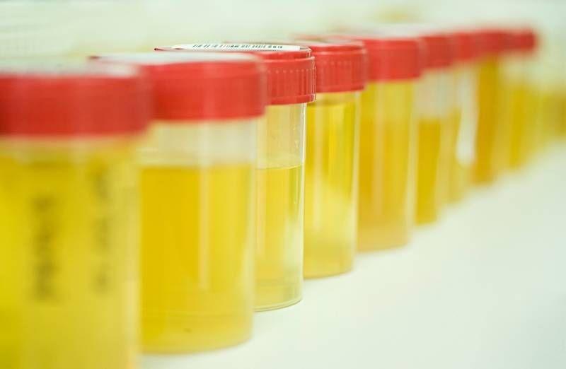 Анализ мочи на камнеобразование больничный лист по беременности и родам совместителям в 2011г