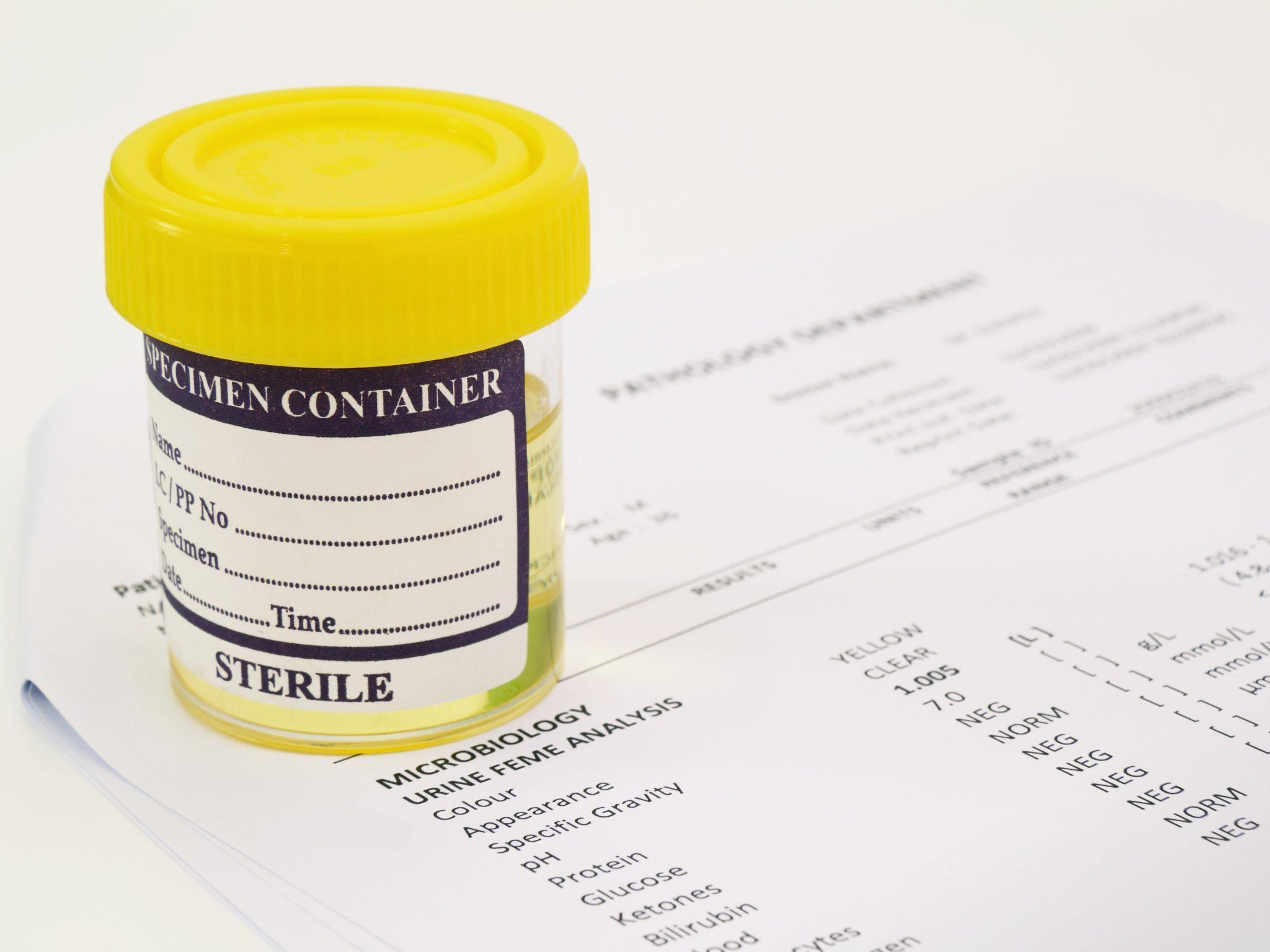 какие препараты относятся к статинам препараты