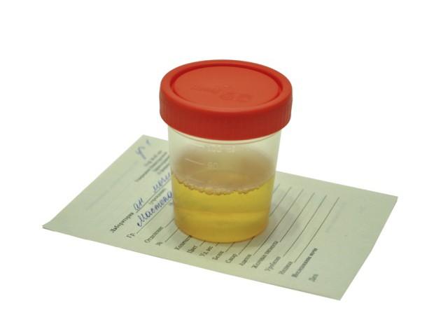 Анализ мочи сколько можно хранить какой ручкой заполнять больничный лист 2012