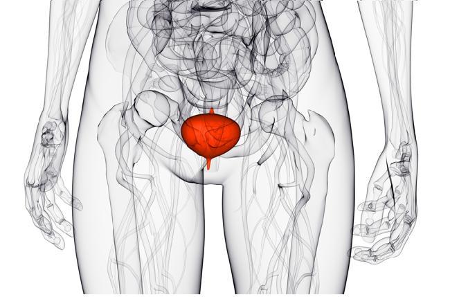 Бактериален цистит (остър и хроничен) симптоми и лечение при жени