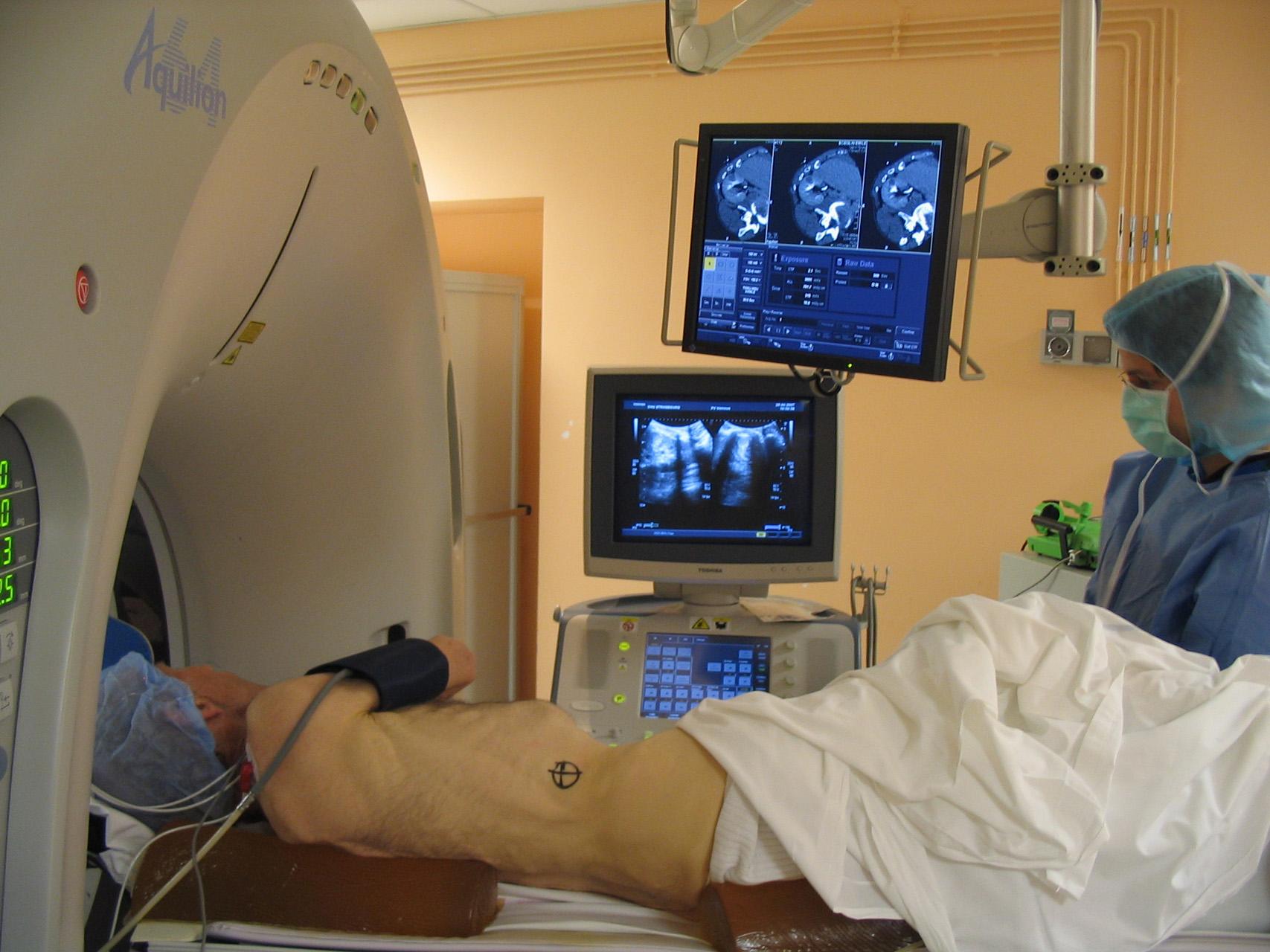 Гемангиома почки у взрослых лечение диагностика Опухоли