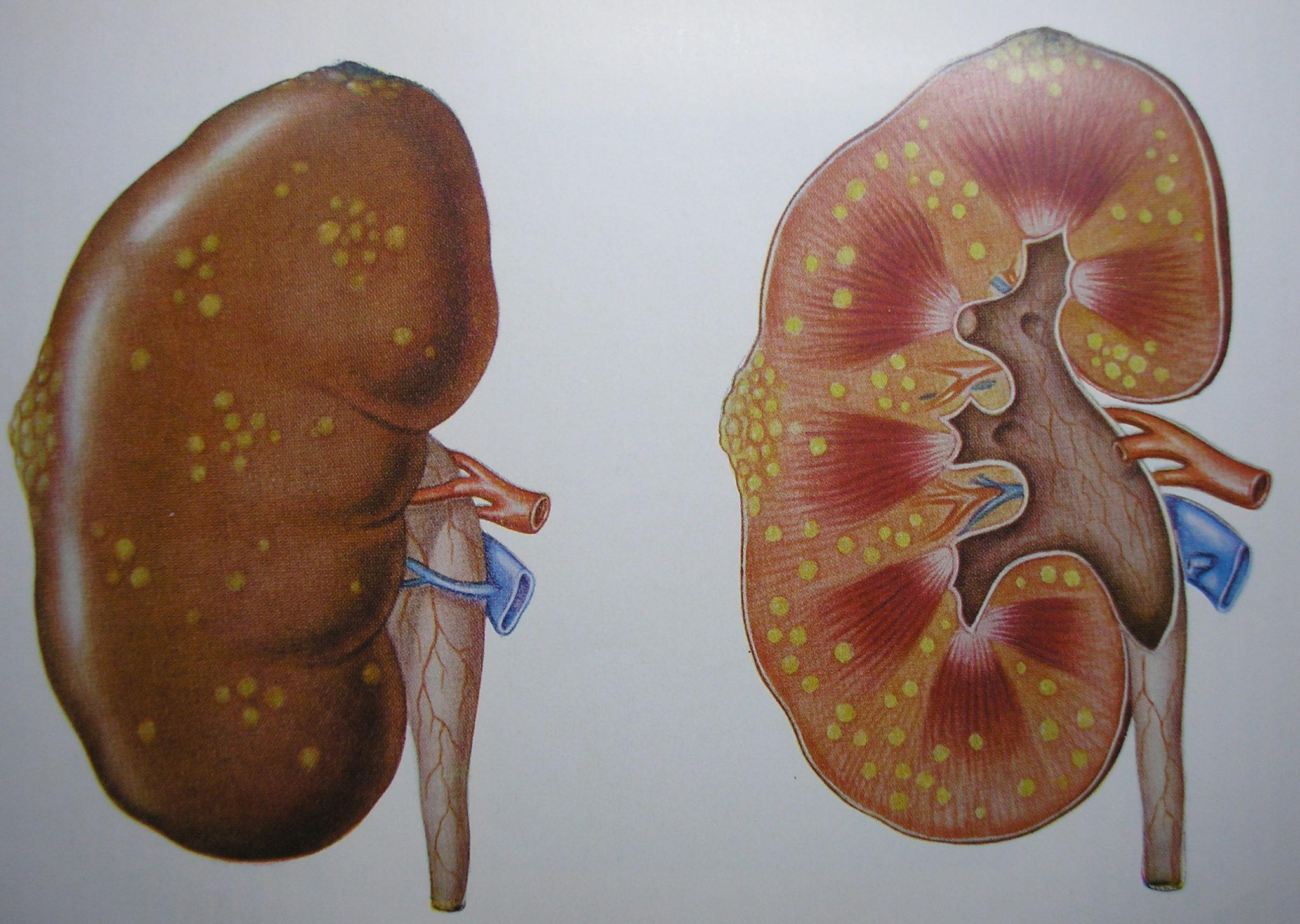 пиелонефрит и мочегонные