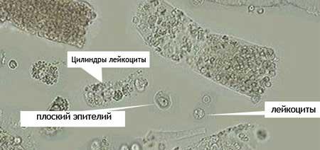 Норма эпителий плоский в моче при беременности