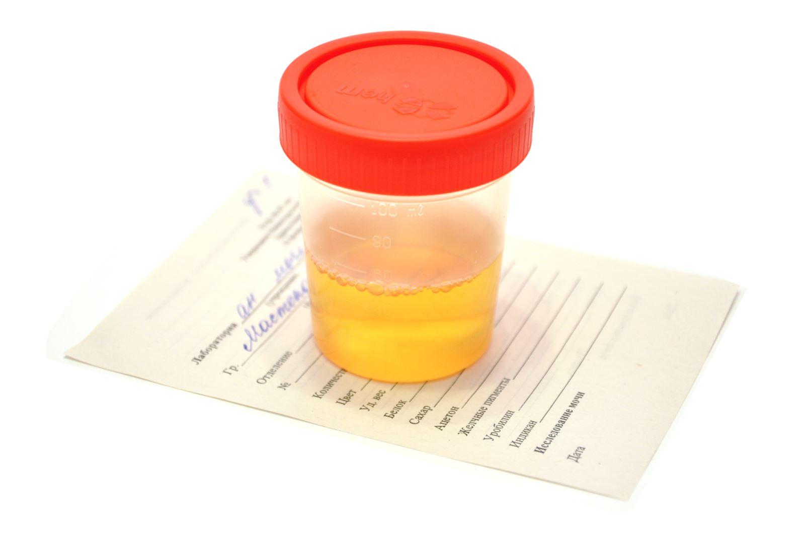 Как правильно сдавать анализ мочи на белок при беременности