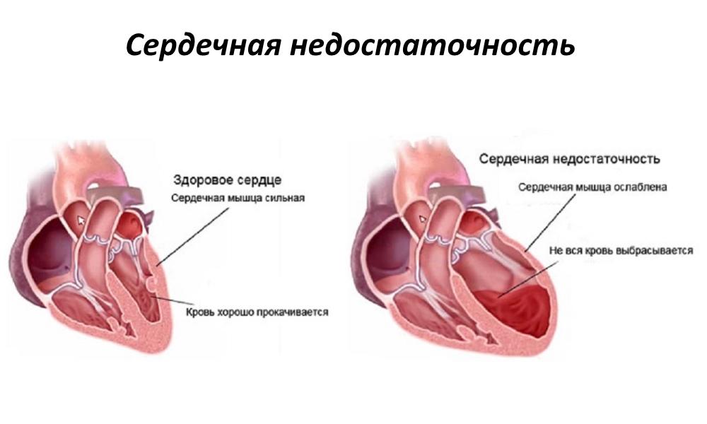 Кровоизлияние в надпочечники у новорожденных и взрослых
