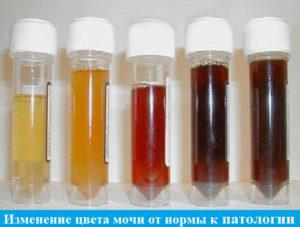 farbe urin schwangerschaft