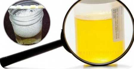 Нитриты в моче обнаружены у беременной 36