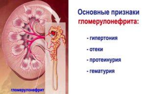 linke niere schmerzen