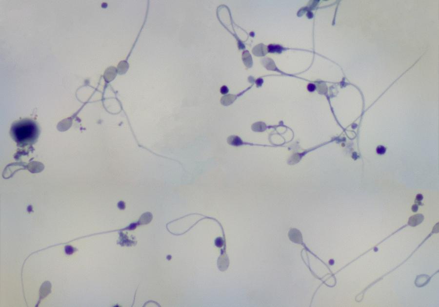 В спермограмме единичные сперматозоиды Давай