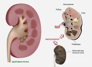 röda blodkroppar i urinen orsaker