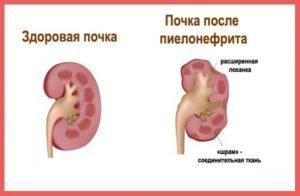пиелонефрит высокое давление