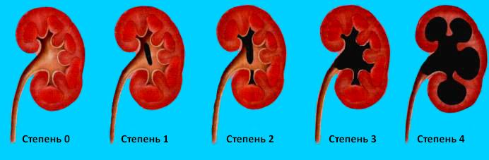 Пиелокаликоэктазия правой почки у беременных 5