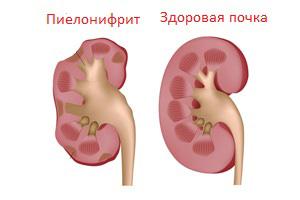 Хронический пиелонефрит у взрослого как лечить