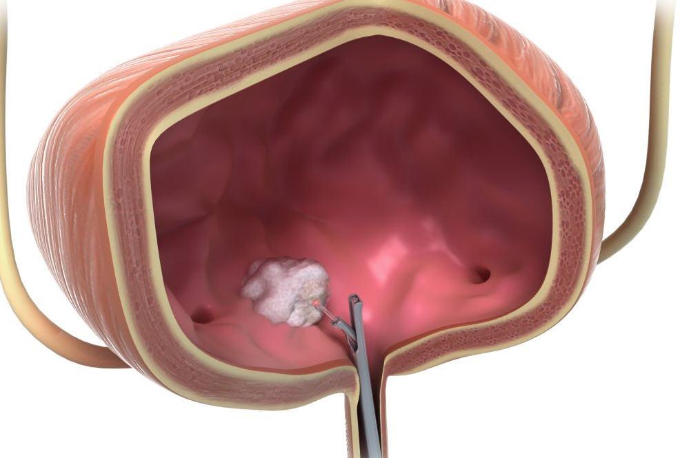 Народные средства для лечения рака щитовидной железы