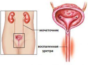 Гнойные выделения из уретры у мужчин