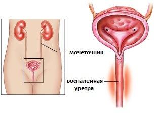 Фото новобразований вокруг уретры