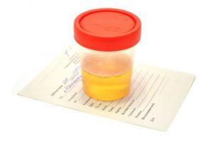 лечение микролитов в почках