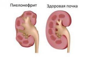 почки анализ крови