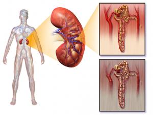 Гидроцефалия и несахарный диабет