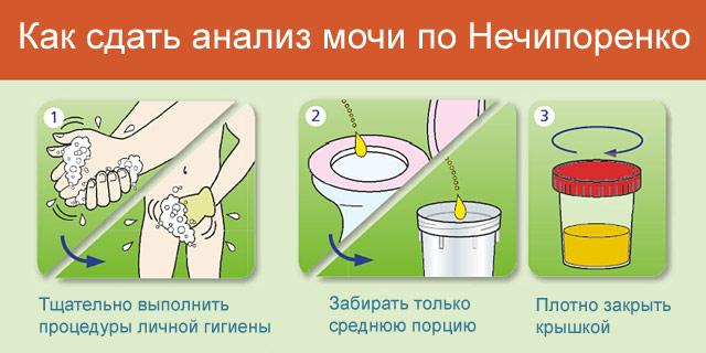 Норма лейкоцитов в моче у женщин