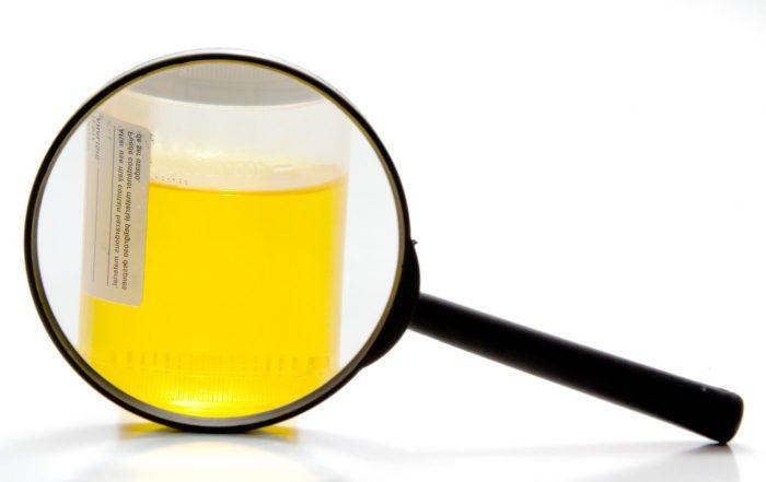 Соли в Моче: Повышенное Содержание, Причины, Симптомы